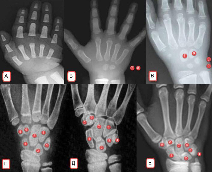 rentgenogrammy-deteji