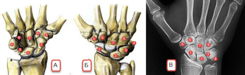 skelet-i-rentgenogramma-zapjastja