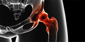 osteohondropatii